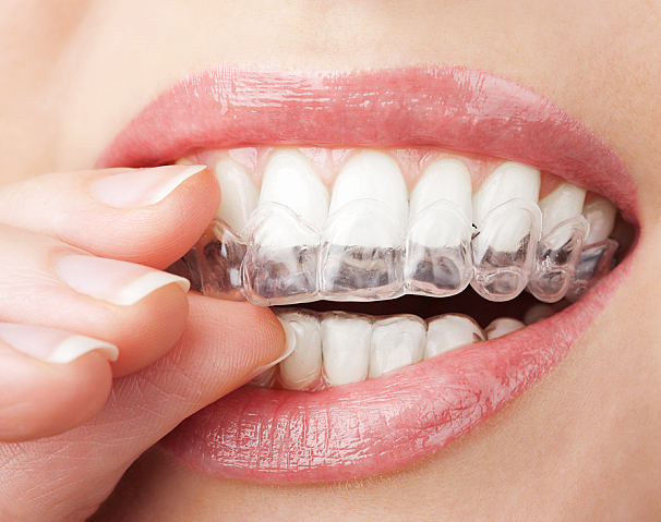 teeth with whitening tray